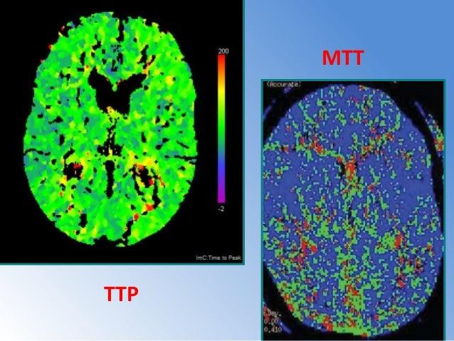 Modo De Adquisicion CT Perfusion • MODO : Cine • Tiempo Rotacion:1Seg • Espesor de corte(pr):5mm/4i. • Espesor de corte(re...