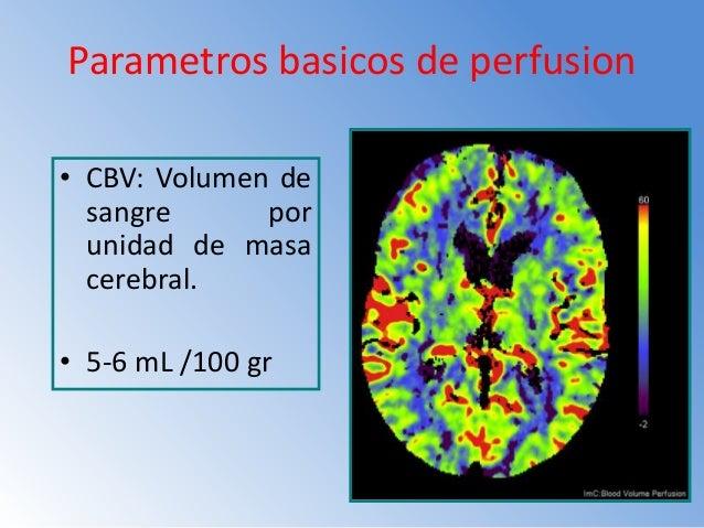 Tabla De Referencia Para Uso De Contraste 370 mg/ml Volumen contraste Flujo inyeccion Tiempo Scan Delay 40 ml 2 cc/seg 60 ...