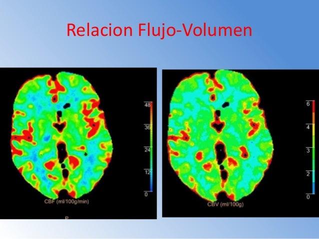 Perfusion cerebral EN TC