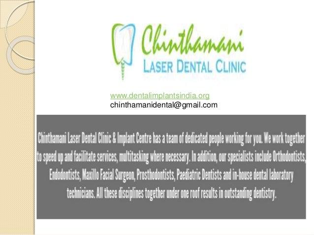 www.dentalimplantsindia.org chinthamanidental@gmail.com