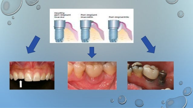 treatment for peri implant diseases Current knowledge, although limited, suggests that peri-implant disease is a condition that, while having several traits in common with periodontal disease, is probably much more complex and with unique and distinctive features that need to be thoroughly investigated.