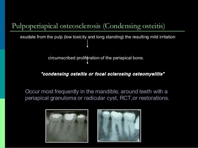 periapical pathology 22  1