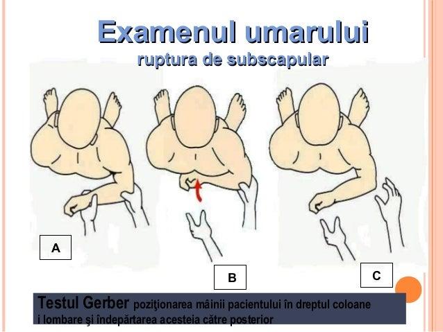Examenul umarului ruptura de subscapular  24  A B  Testul Gerber poziţionarea mâinii pacientului în dreptul coloane i lomb...