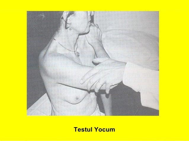 26  Testul Yocum