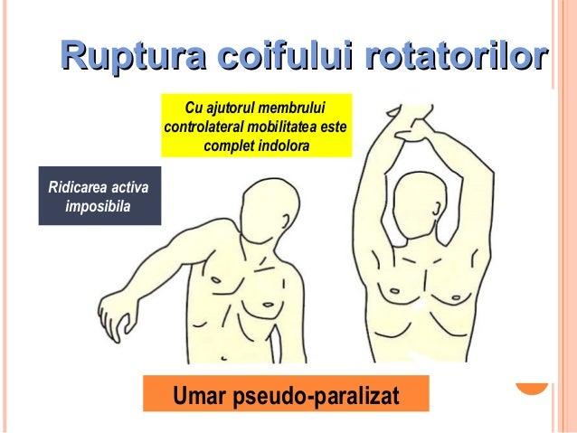 Ruptura coifului rotatorilor  Ridicarea activa imposibila  Umar pseudo-paralizat  33  Cu ajutorul membrului controlateral ...