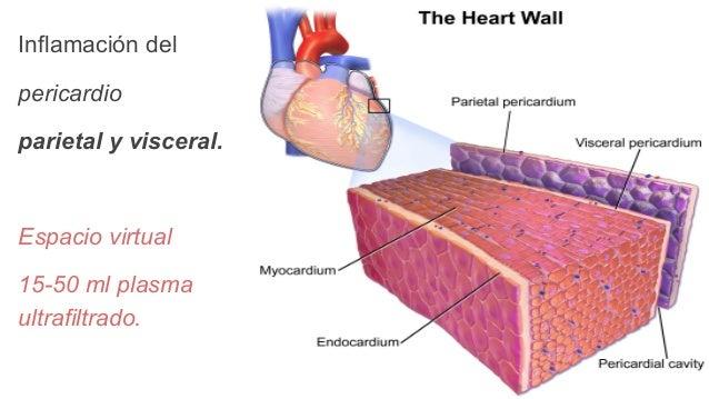 Pericarditis aguda Slide 2