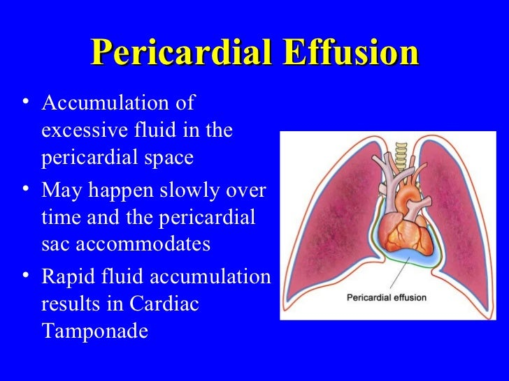 pericarditis, pericardial effusion, & cardiac tamponade - bmh/tele, Skeleton