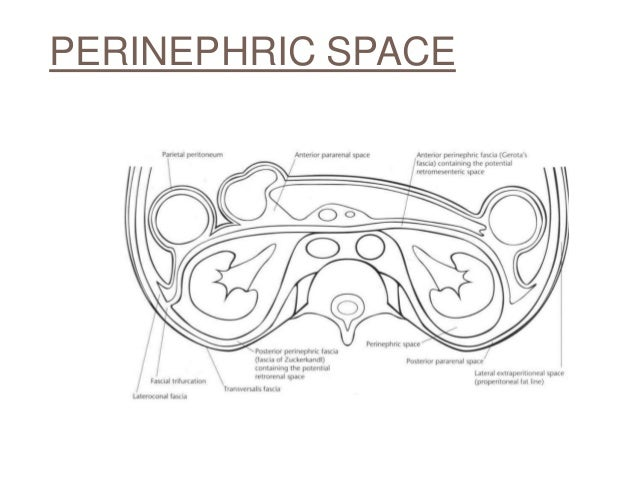 Perinephric Abscess Imaging