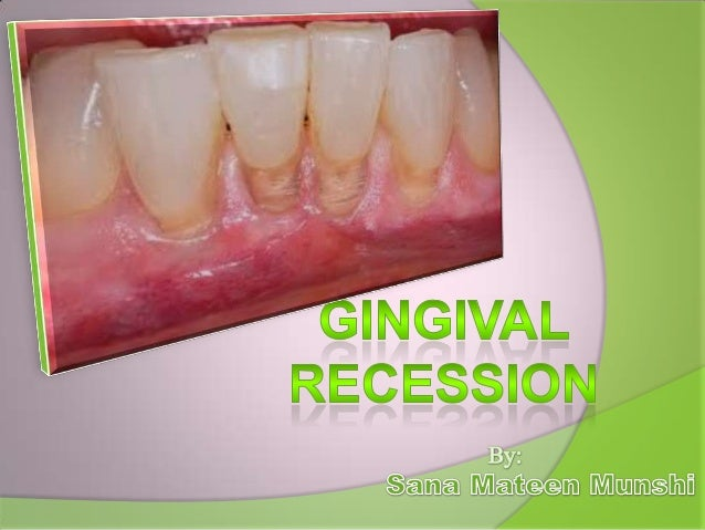 Exposition of the radicular surface of the tooth due to destruction of the marginal gingiva and of the juntional epitheliu...