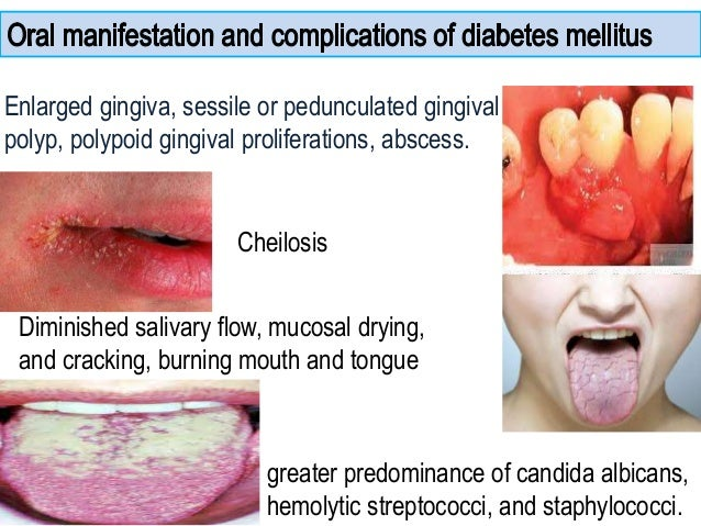 oral manifestations of diabetes mellitus pdf