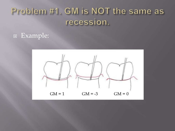   Example:               GM = 1   GM = -3   GM = 0