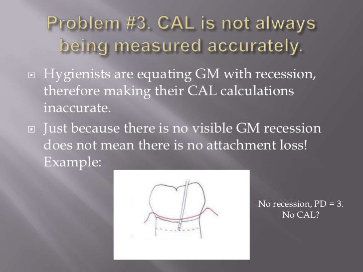   Hygienists are equating GM with recession,    therefore making their CAL calculations    inaccurate.   Just because t...