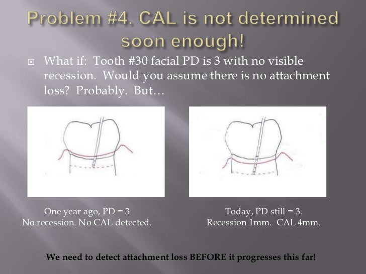    What if: Tooth #30 facial PD is 3 with no visible     recession. Would you assume there is no attachment     loss? Pro...