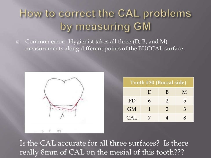     Common error: Hygienist takes all three (D, B, and M)     measurements along different points of the BUCCAL surface. ...