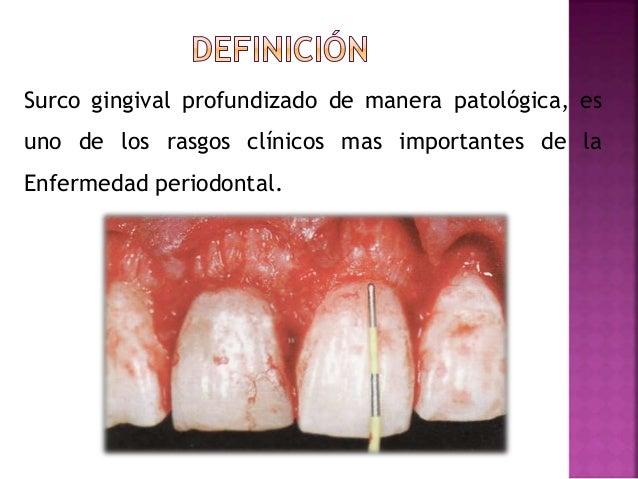 Bolsa periodontal Slide 2