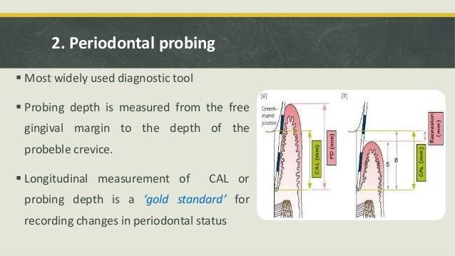 Periodontal Probe Measurements Advanced Periodontal d...