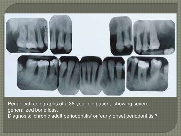 adult periodontitis;( This classification system is heavily age dependent: a cut-off point of 35 Years)
