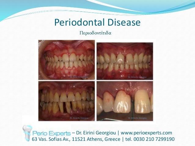 Periodontal Disease – Dr. Eirini Georgiou | www.perioexperts.com 63 Vas. Sofias Av., 11521 Athens, Greece | tel. 0030 210 ...