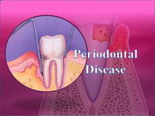 Classification of Periodontal Disease The Periodontal Pocket Extension of Inflammation from the Gingiva to The Supporting ...