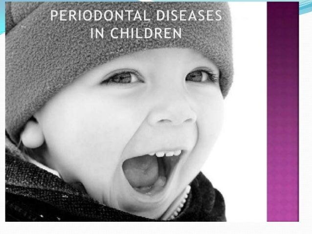 Anatomy of the periodontium in children Gingiva Marginal gingiva  For children,marginal gingival tissue around the primar...