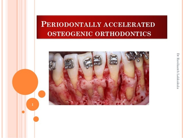PERIODONTALLY ACCELERATED OSTEOGENIC ORTHODONTICS 1 DrRavikanthLakkakula