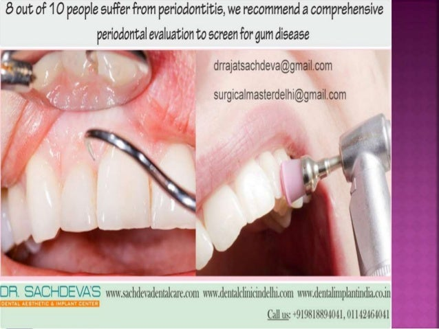 periodontal plastic surgery