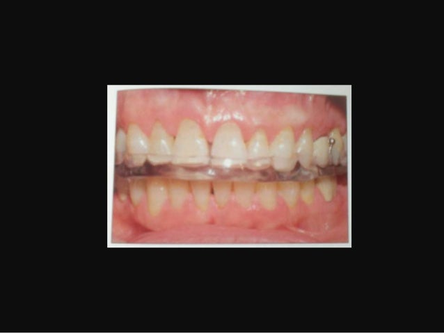 PATHOLOGIC TOOTH MIGRATIONB. Failure to replace First Molars• Second & third molars tilt reducing the verticaldimension• P...