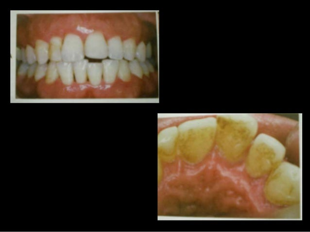 Periodontal response to external forces