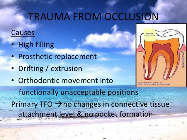 CLASSIFICATION OFPARAFUNCTIONAL HABITS Tooth to ToothBruxismClenching Oral musculature to toothLip bitingTongue thrustin...