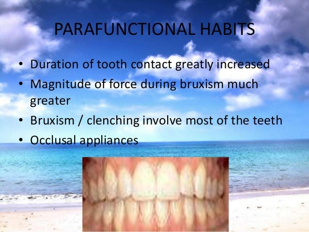 TRAUMA FROM OCCLUSION• Normal bone levels & attachment levels• Excessive occlusal forces• Normal periodontium with normal ...