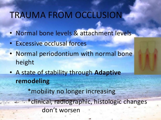 TRAUMA FROM OCCLUSION• More vulnerable to injury• Previously well tolerated forces becometraumatic• Normal periodontium/Ma...