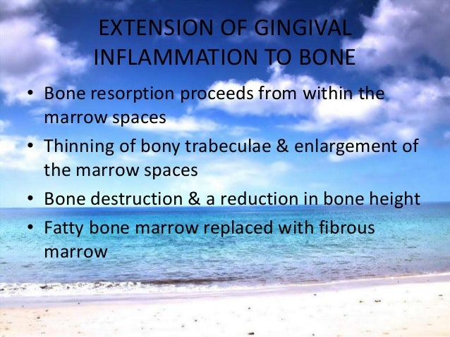 GLICKMAN'S CONCEPTZONE OF IRRITATION• Marginal gingiva & interdental gingiva• Soft tissues bordered by the hard tissue on ...