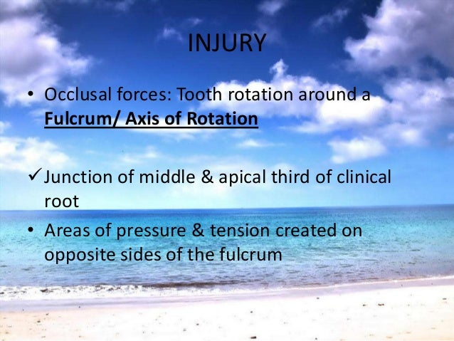 INJURYSEVERE PRESSURE• Force the root against bone• Necrosis of the PDL & bone• Bone resorption from viable PDL & marrowsp...
