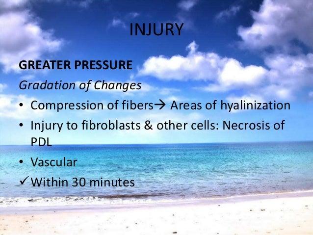 REPAIR• Normal periodontium: Constant repair• TFO - increased reparative activity• Damaged tissues removed & formation of ...