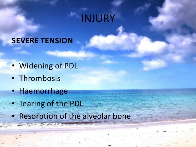 REPAIRBUTTRESSING BONE FORMATION• Important feature of Repair after TFO• Inflammation• Osteolytic tumorsCentral Buttressi...