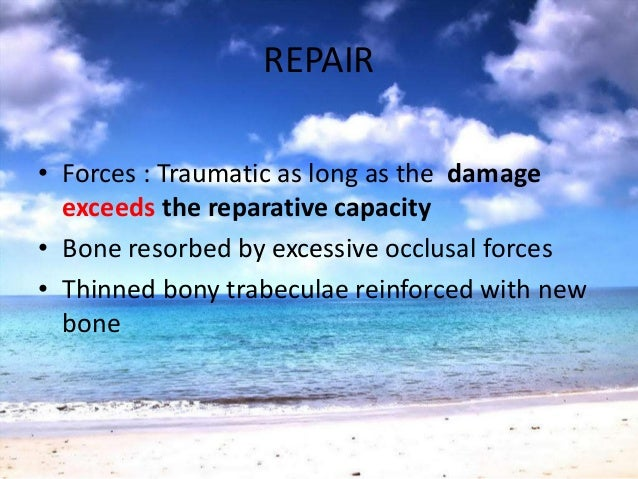 EFFECTS OF INSUFFICIENT OCCLUSALFORCE• Injurious to periodontium• Thinning of the PDL• Atrophy of fibers• Osteoporosis of ...