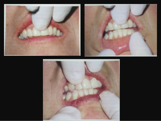 OCCLUSAL TREATMENTOCCLUSAL ADJUSTMENT• Permanent alteration:- Orthodontic therapy- Selective grinding• Permanent change – ...