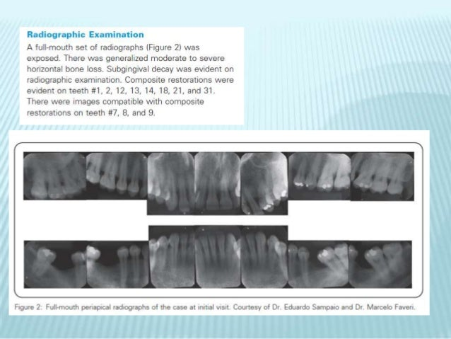oral pathology case studies Oral pathology online case discussions searching for mb2 implants #18, #19 nice retrofil molars with lesions tooth #4.