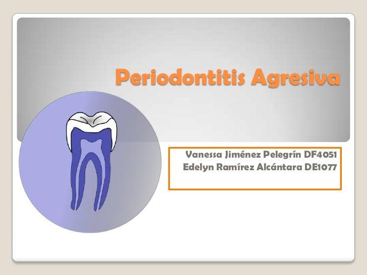 Periodontitis Agresiva      Vanessa Jiménez Pelegrín DF4051      Edelyn Ramírez Alcántara DE1077