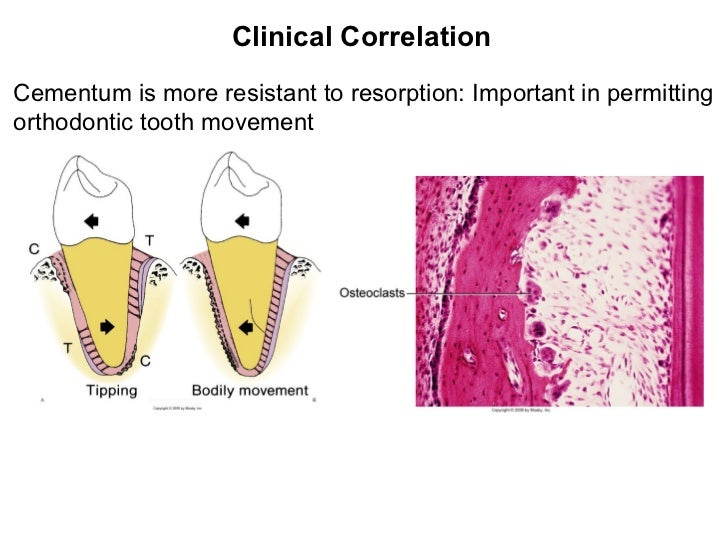 Clinical Correlation Cementum is more resistant to resorption: Important in permitting orthodontic tooth movement