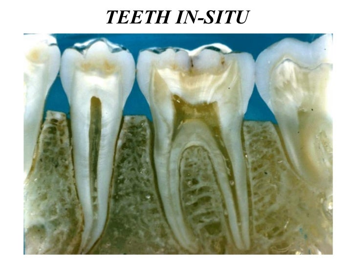 TEETH IN-SITU