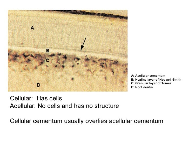 A: Acellular cementum B: Hyaline layer of Hopwell-Smith C: Granular layer of Tomes D: Root dentin Cellular:  Has cells Ace...