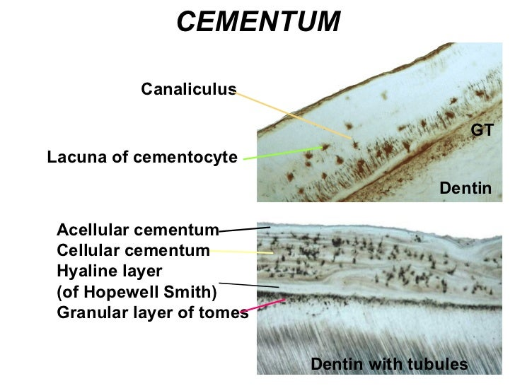 Dentin GT Lacuna of cementocyte Canaliculus CEMENTUM Acellular cementum Cellular cementum Hyaline layer  (of Hopewell Smit...