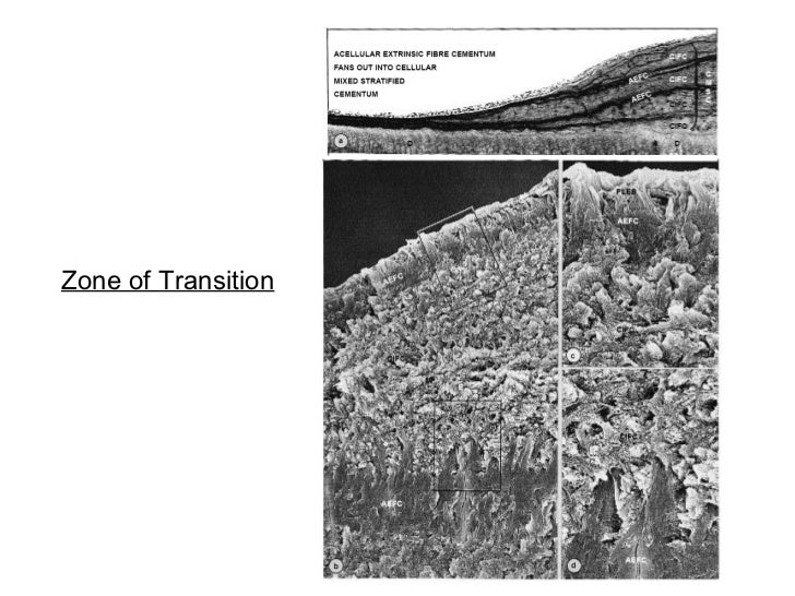 Zone of Transition