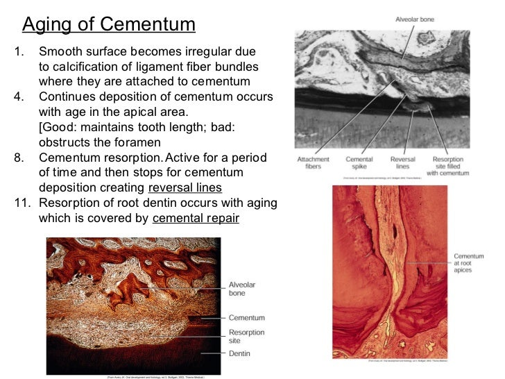 Aging of Cementum <ul><li>Smooth surface becomes irregular due </li></ul><ul><li>to calcification of ligament fiber bundle...