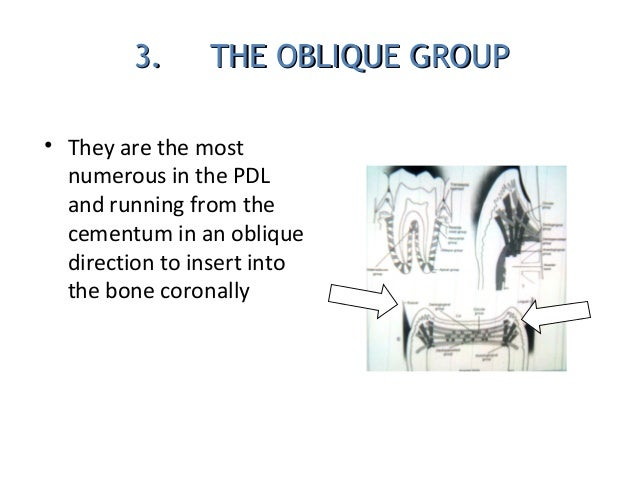 3. THE OBLIQUE GROUP3. THE OBLIQUE GROUP • They are the most numerous in the PDL and running from the cementum in an obliq...