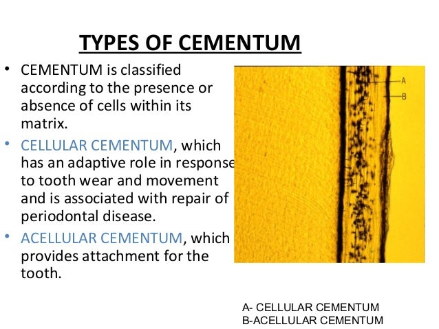 TYPES OF CEMENTUM • CEMENTUM is classified according to the presence or absence of cells within its matrix. • CELLULAR CEM...