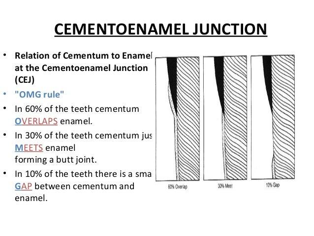 "CEMENTOENAMEL JUNCTION • Relation of Cementum to Enamel at the Cementoenamel Junction (CEJ) • ""OMG rule"" • In 60% of the t..."