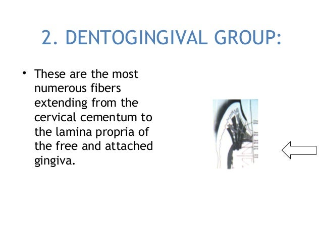 2. DENTOGINGIVAL GROUP: • These are the most numerous fibers extending from the cervical cementum to the lamina propria of...
