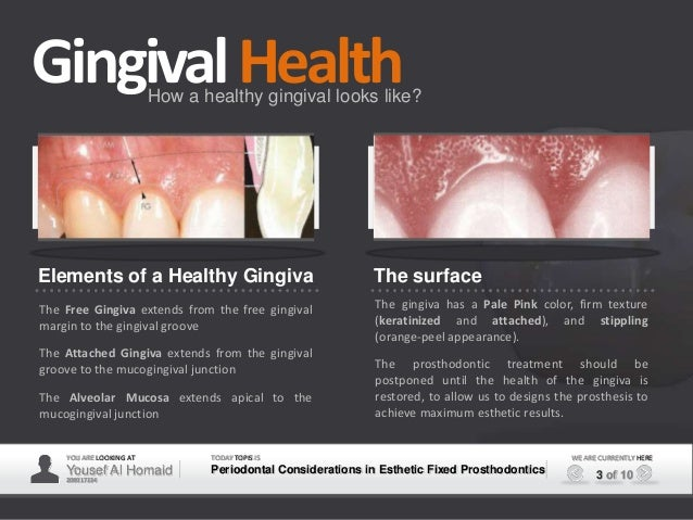 Periodontal Esthetic Considerations In Fixed Prosthodontics